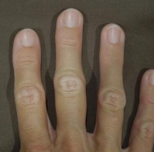 The recent swollen finger betrayal.